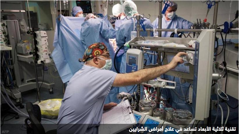 تطوير تقنية حديثة تخفض النوبات القلبية والسكتات الدماغية